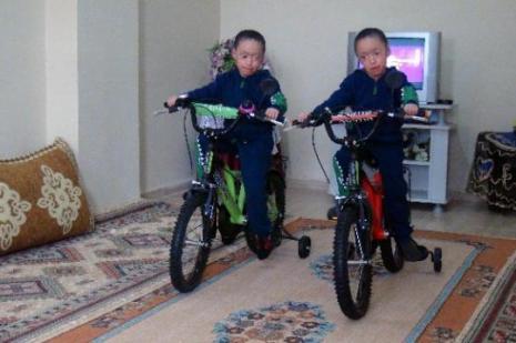Balık pulu hastası ikizlerden sevindiren haber