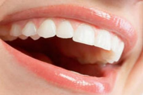 Stresin ağız ve diş sağlığı üzerindeki etkisini biliyor musunuz?