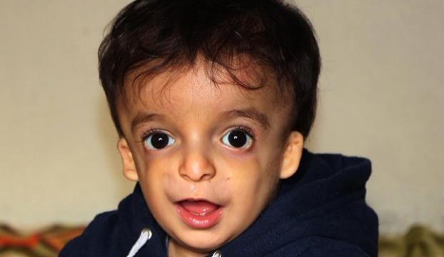 1 yaşındaki bebeğin 18 bin liralık işitme cihazı çalındı
